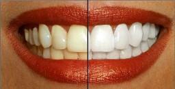 Alimentos que blanquearán tus dientes naturalmente en semanas